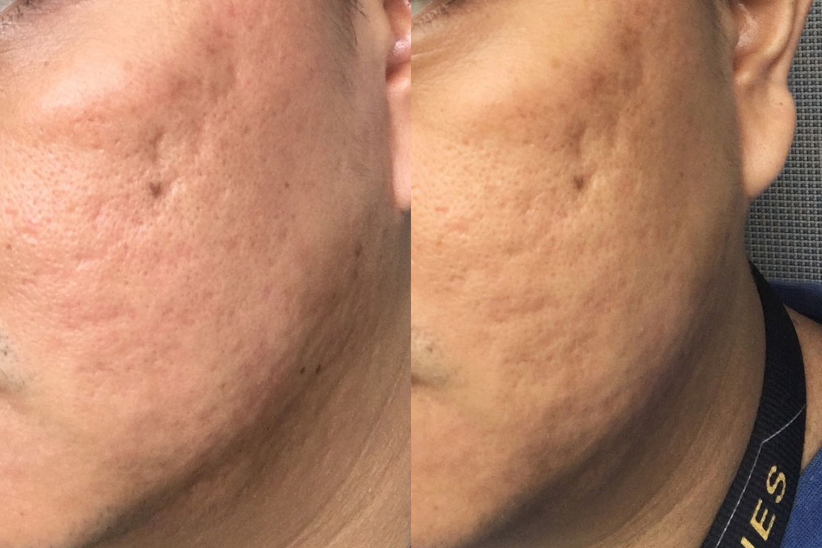 Flawless Easy Peel Day 1 & 2