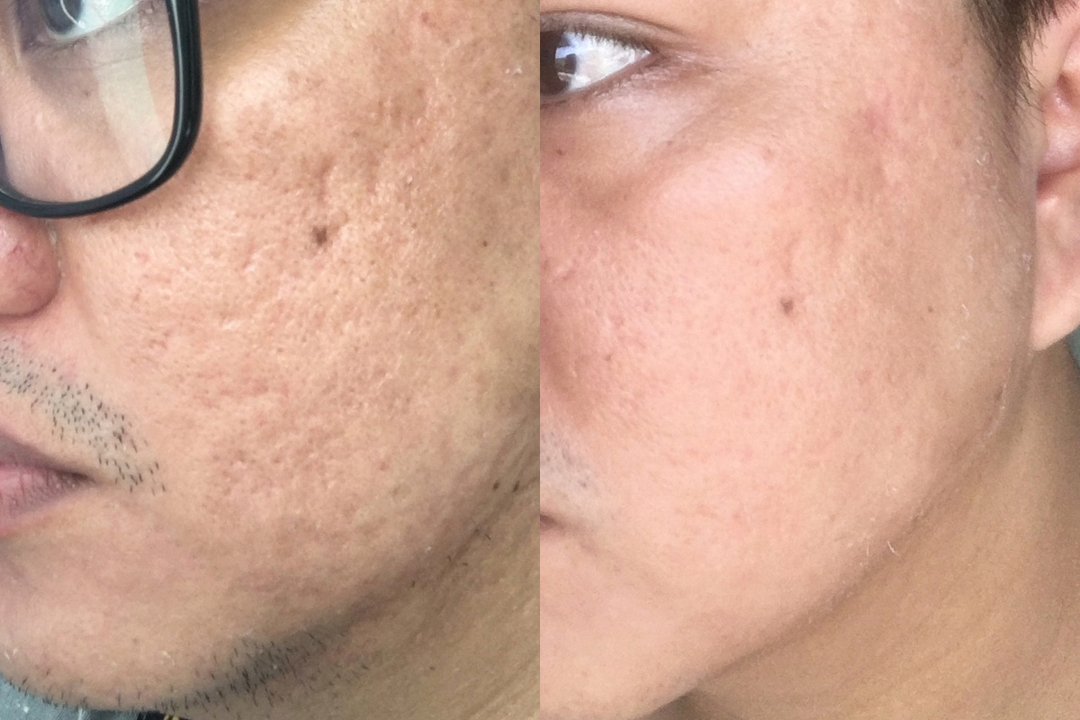 Flawless Easy Peel Day 5, 6 & 7 Results